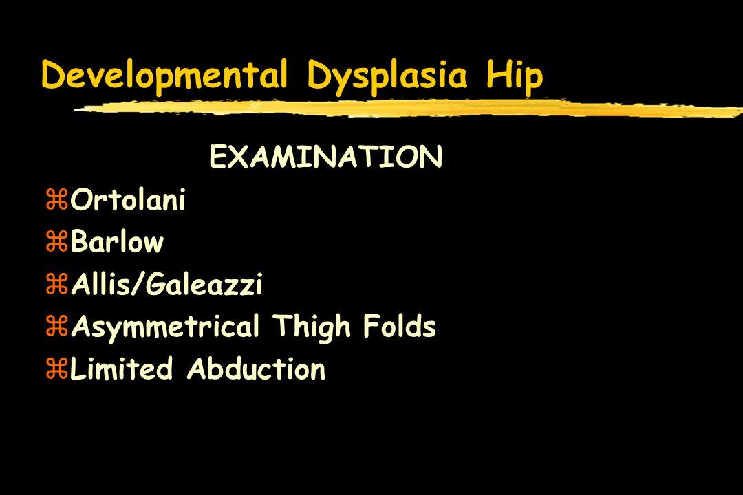 Developmental Dysplasia Hip EXAMINATION zOrtolani zBarlow zAllis/Galeazzi zAsymmetrical Thigh Folds zLimited Abduction