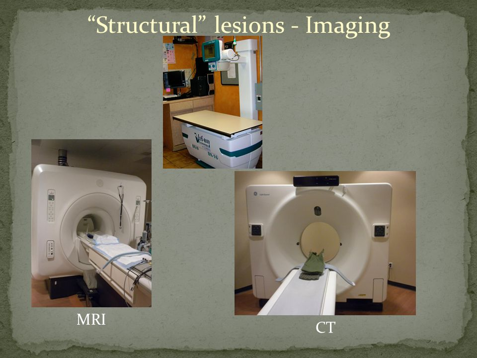 Structural lesions - Imaging MRI CT
