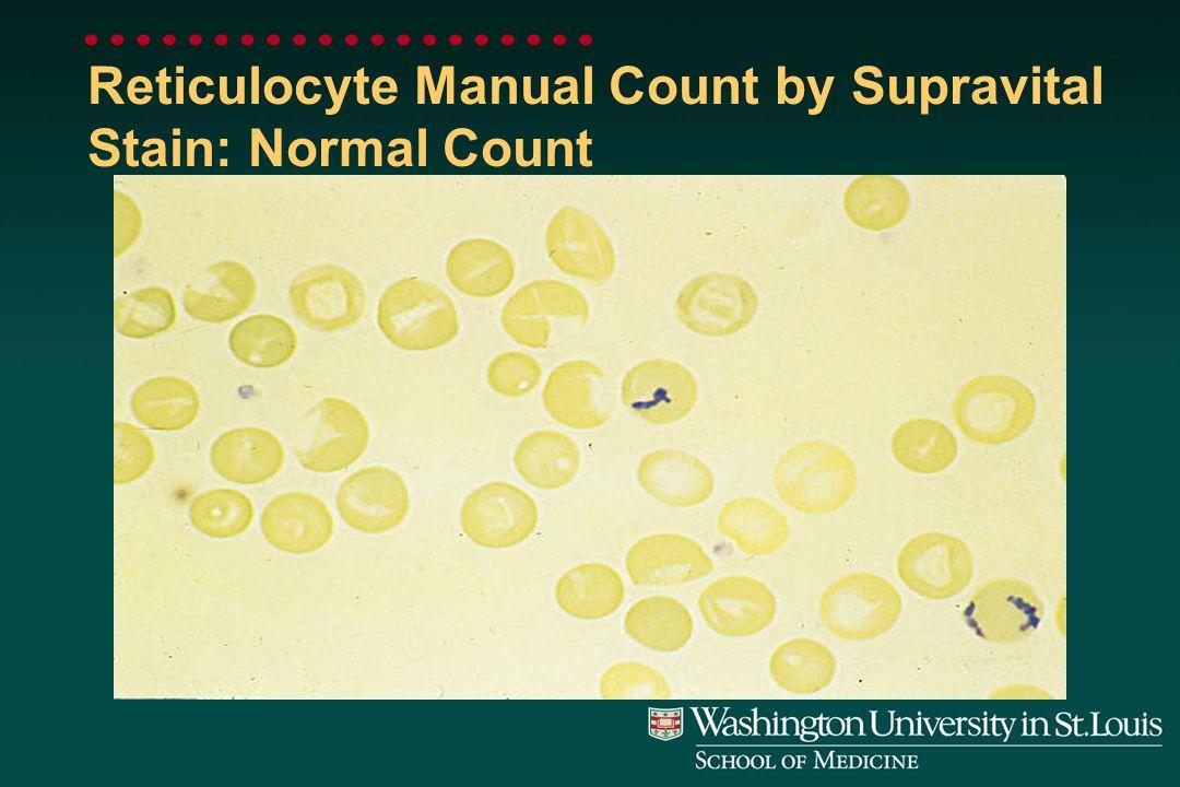 Reticulocyte: Polychromasia