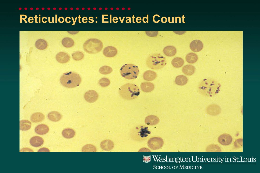 Reticulocyte Manual Count by Supravital Stain: Normal Count