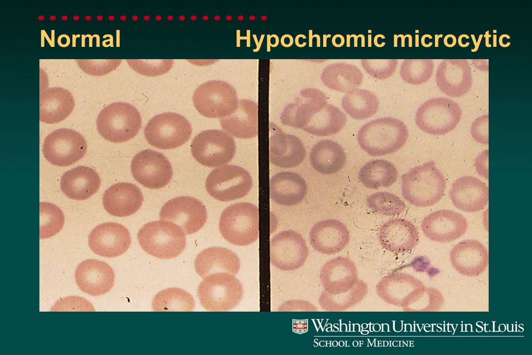 Hypochromic Microcytic RBC