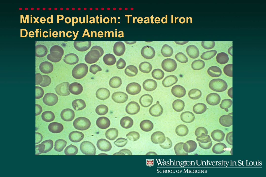 Severe Hypochromia: Iron Deficiency Anemia