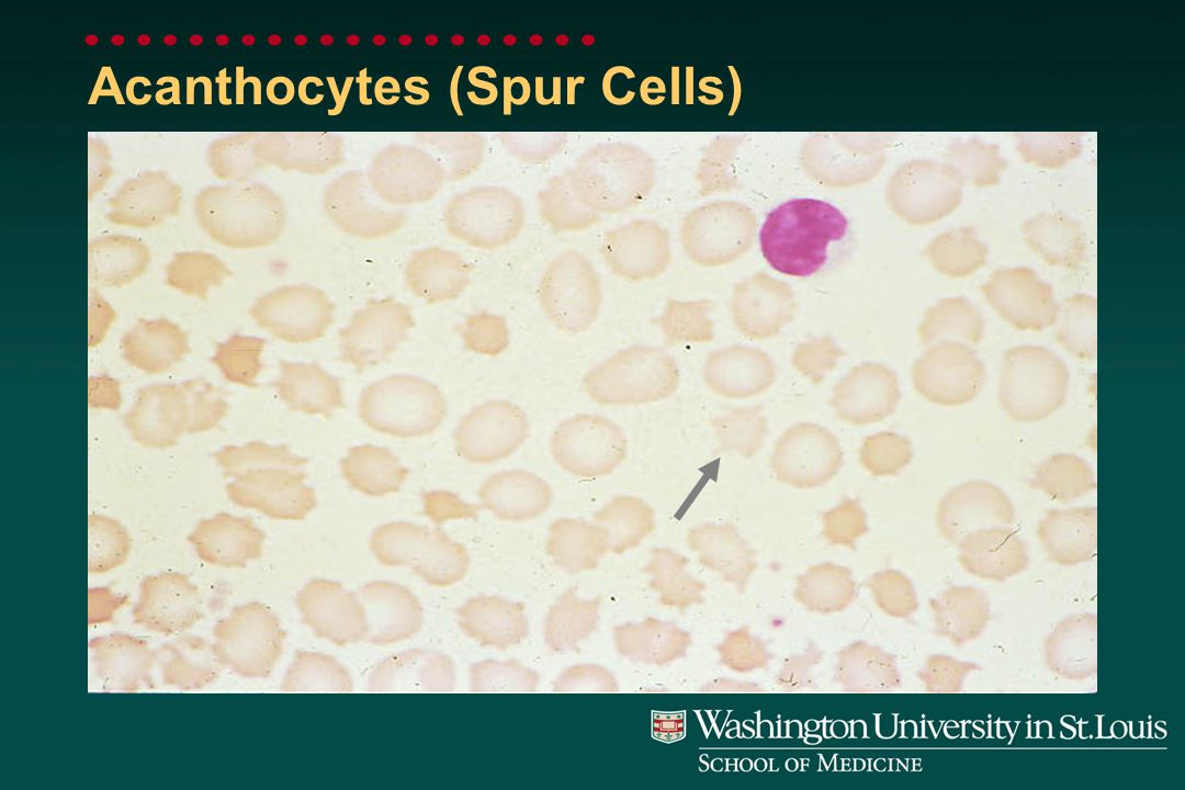 Echinocytes (Burr Cells)