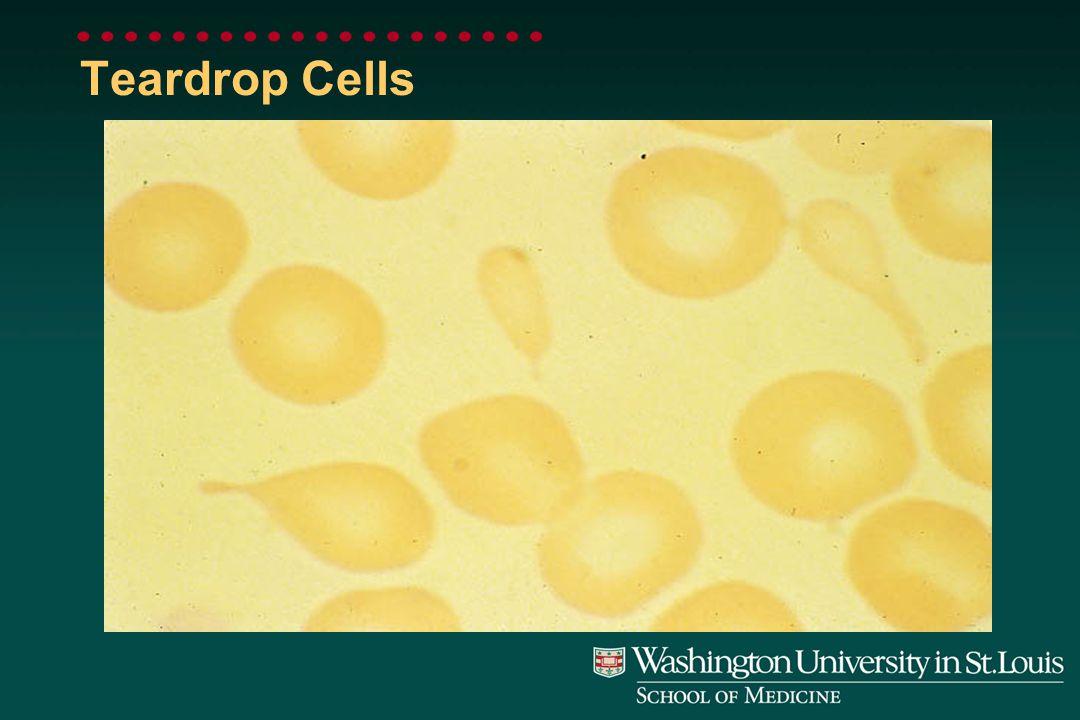 Homozygous Hemoglobin C Disease (Hgb CC)