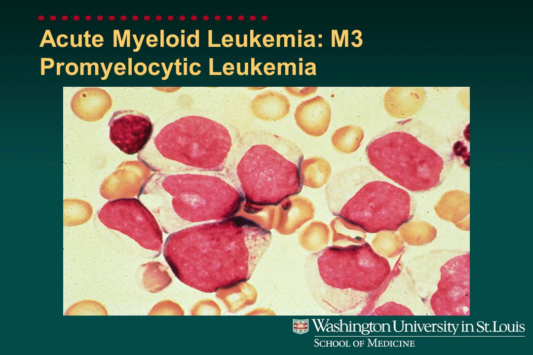 Acute Myeloid Leukemia: M2 Myeloblasts with Some Differentiation