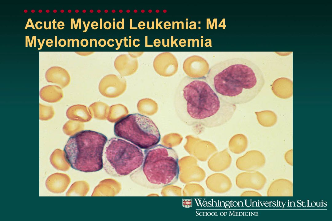 Acute Myeloid Leukemia: M3 Promyelocytic Leukemia