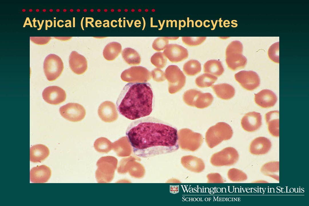 Atypical (Reactive) Lymphocytes