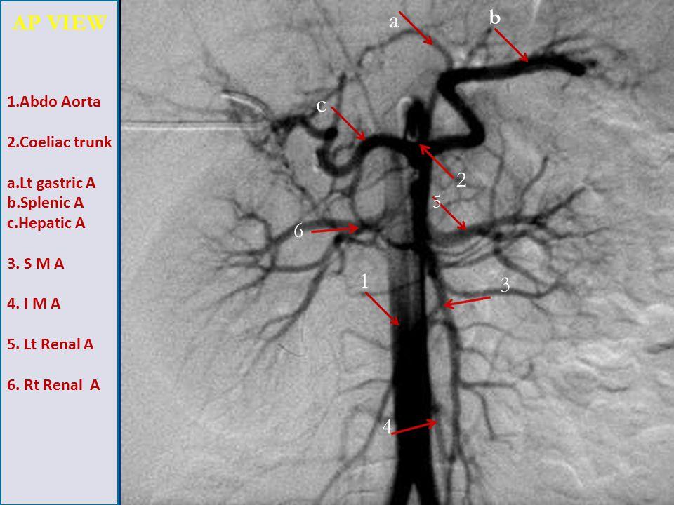 1.Abdo Aorta 2.Coeliac trunk a.Lt gastric A b.Splenic A c.Hepatic A 3.