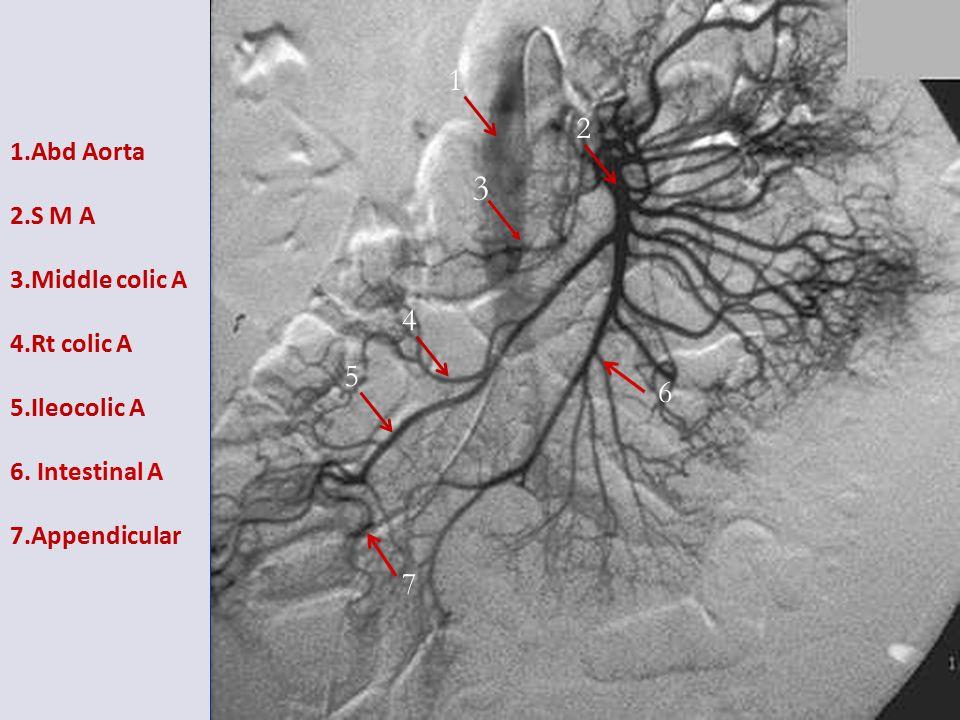 1.Abd Aorta 2.S M A 3.Middle colic A 4.Rt colic A 5.Ileocolic A 6.