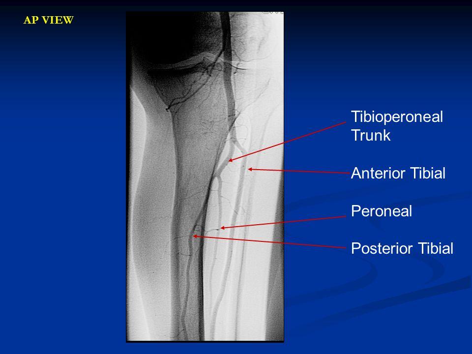 Tibioperoneal Trunk Anterior Tibial Peroneal Posterior Tibial AP VIEW