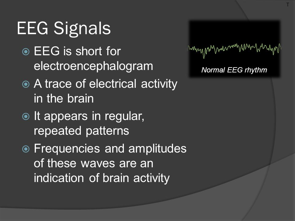 EEG Signals  EEG is short for electroencephalogram  A trace of electrical activity in the brain  It appears in regular, repeated patterns  Frequencies and amplitudes of these waves are an indication of brain activity T Normal EEG rhythm