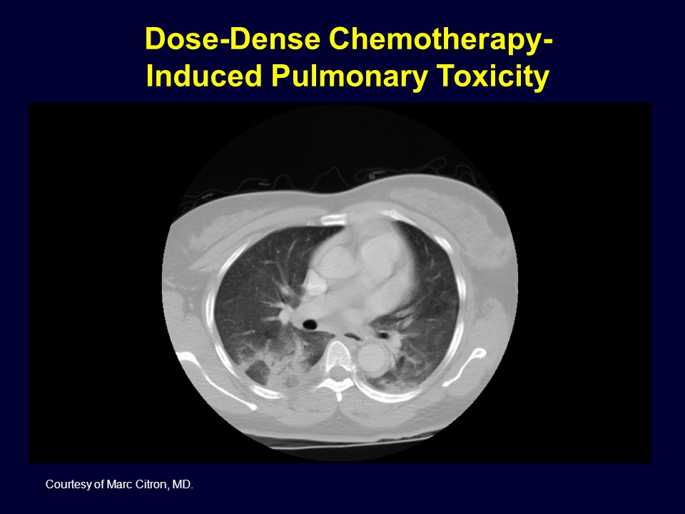 Dose-Dense Chemotherapy- Induced Pulmonary Toxicity Courtesy of Marc Citron, MD.