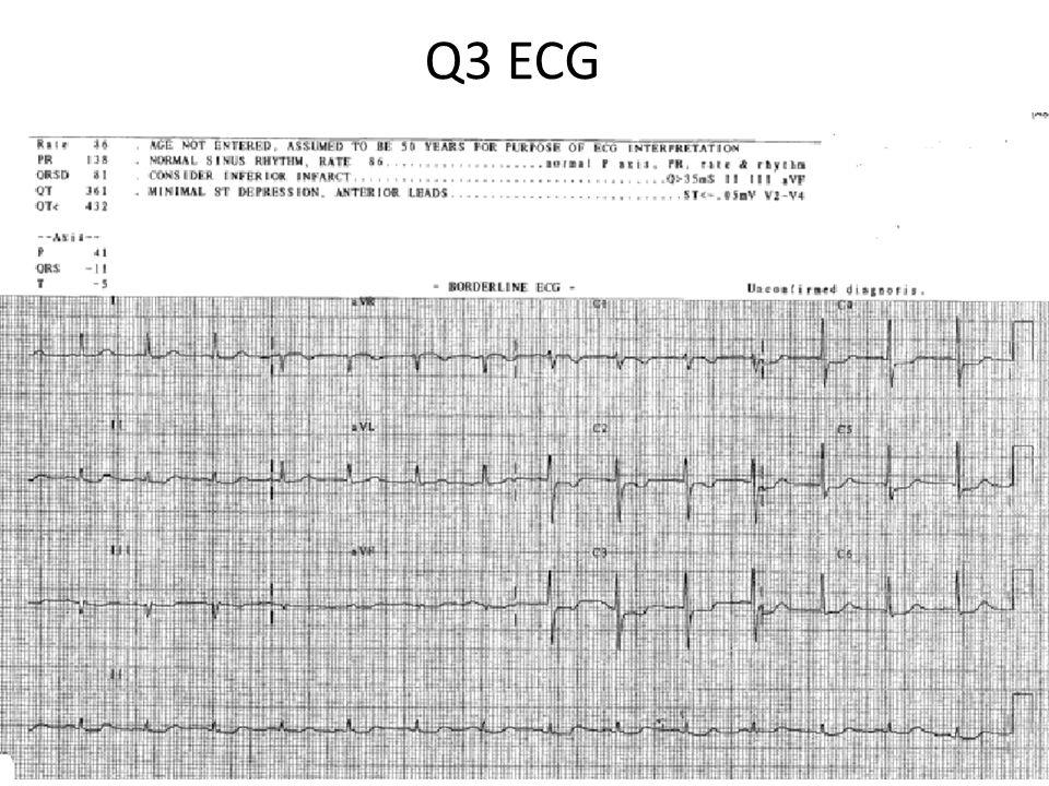 Q3 ECG