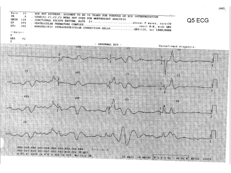 Q5 ECG