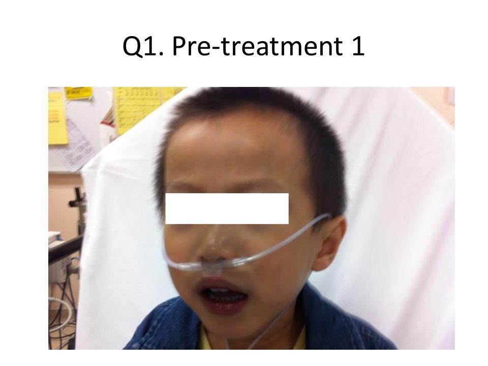Q1. Pre-treatment 1
