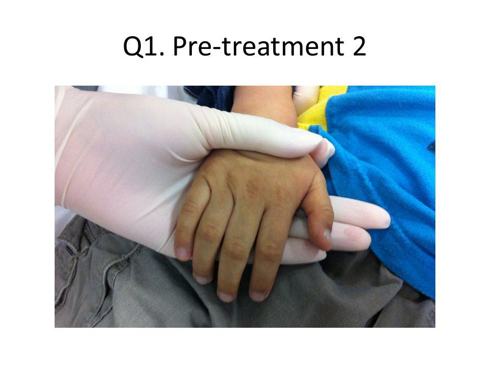 Q1. Pre-treatment 2