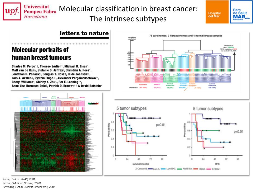 Molecular classification in breast cancer: The intrinsec subtypes Sorlie, T et al.