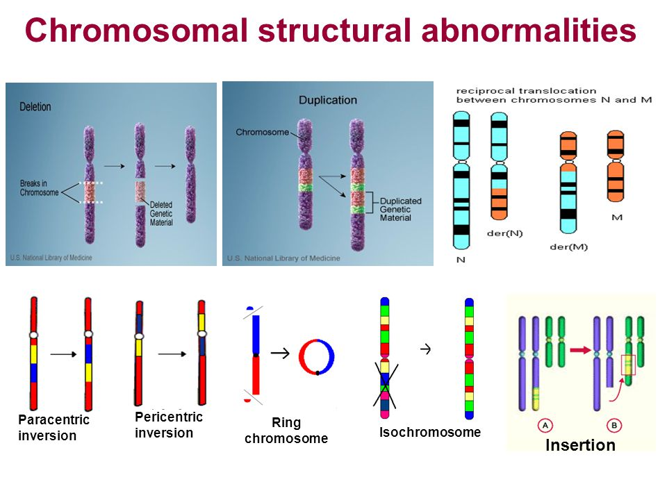 Ring chromosome Pericentric inversion Paracentric inversion Isochromosome Insertion Chromosomal structural abnormalities