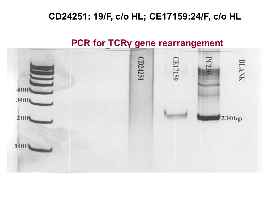 CD24251: 19/F, c/o HL; CE17159:24/F, c/o HL PCR for TCRγ gene rearrangement