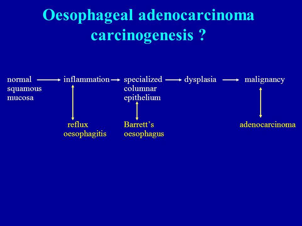 Oesophageal adenocarcinoma carcinogenesis .
