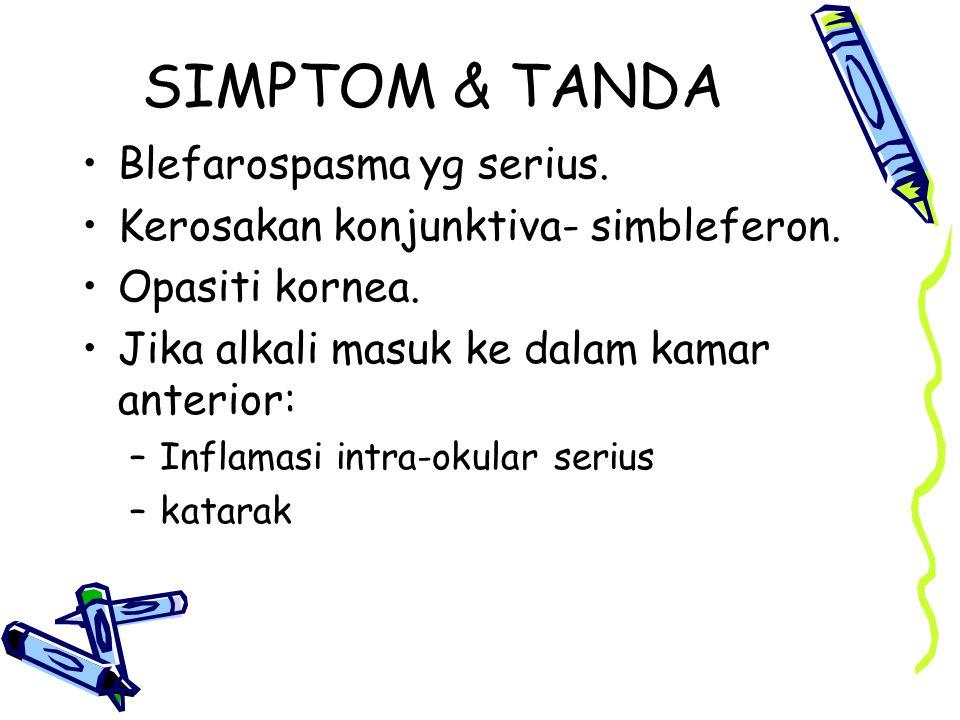 SIMPTOM & TANDA Blefarospasma yg serius. Kerosakan konjunktiva- simbleferon. Opasiti kornea. Jika alkali masuk ke dalam kamar anterior: –Inflamasi int