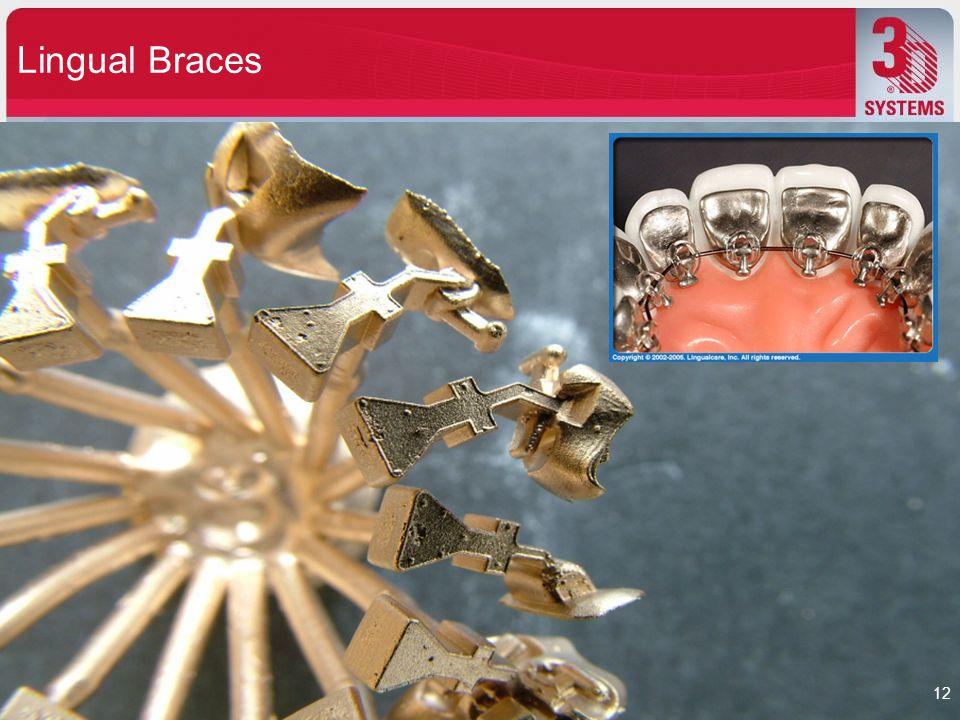 Lingual Braces 12