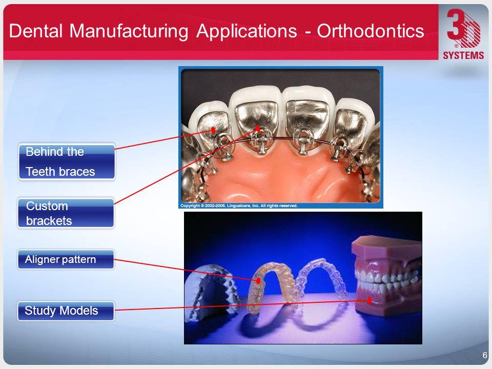 Dental Manufacturing Applications - Orthodontics Custom brackets Aligner pattern Study Models Behind the Teeth braces 6