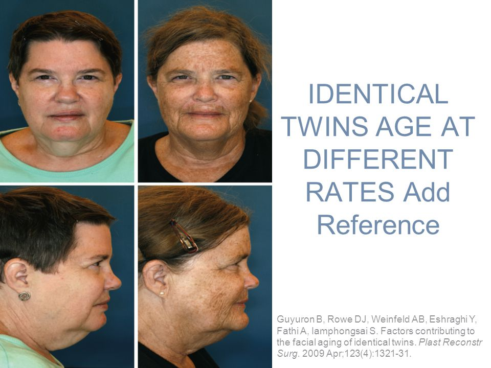 IDENTICAL TWINS AGE AT DIFFERENT RATES Add Reference Guyuron B, Rowe DJ, Weinfeld AB, Eshraghi Y, Fathi A, Iamphongsai S. Factors contributing to the