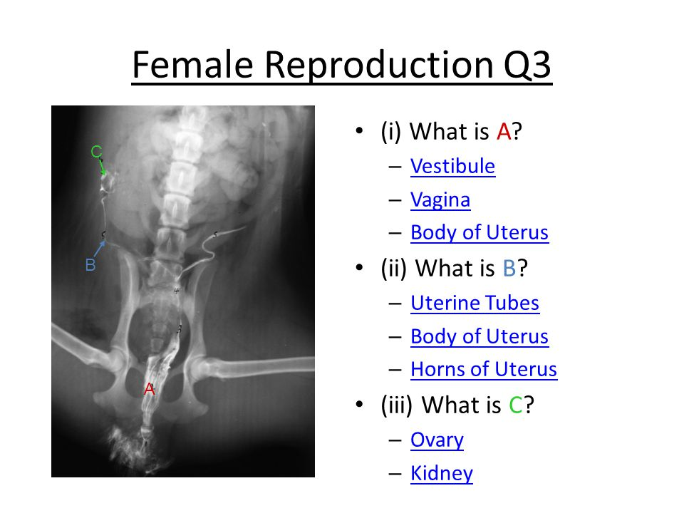 Female Reproduction Q3 (i) What is A.
