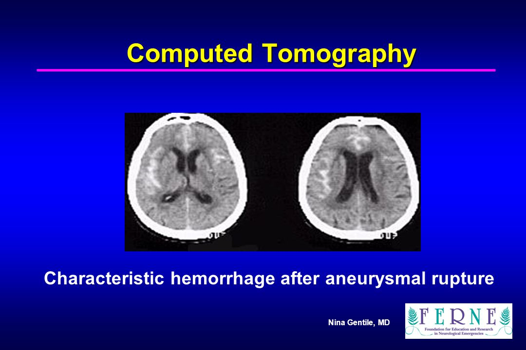Nina Gentile, MD Computed Tomography Characteristic hemorrhage after aneurysmal rupture