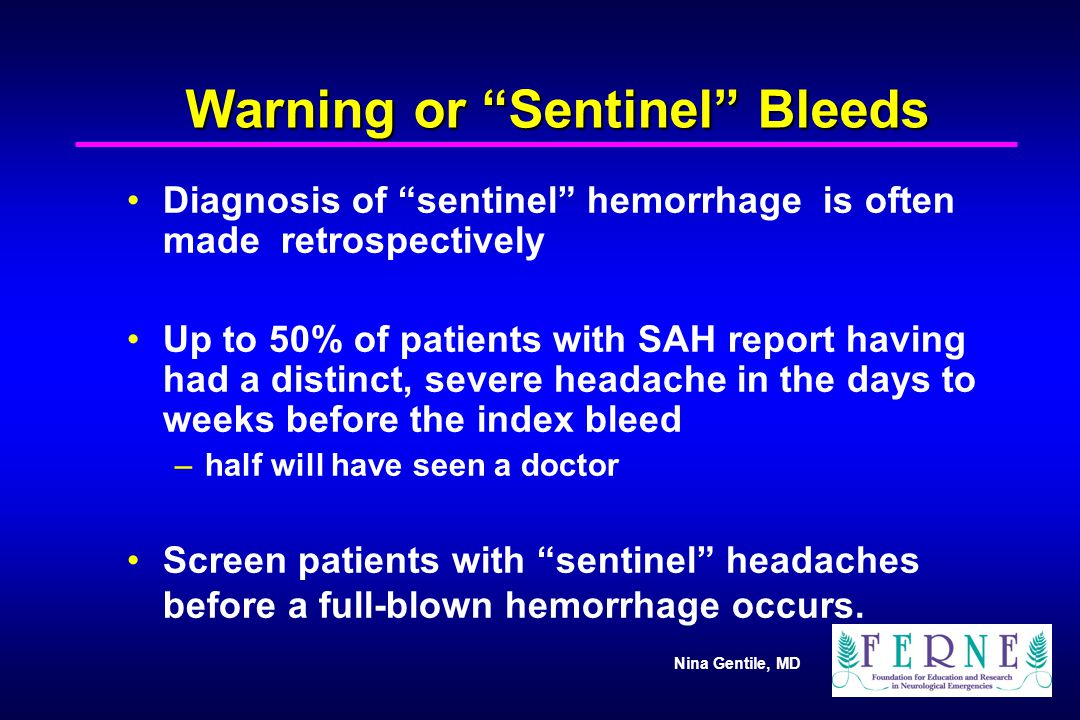 """Nina Gentile, MD Warning or """"Sentinel"""" Bleeds Diagnosis of """"sentinel"""" hemorrhage is often made retrospectively Up to 50% of patients with SAH report h"""