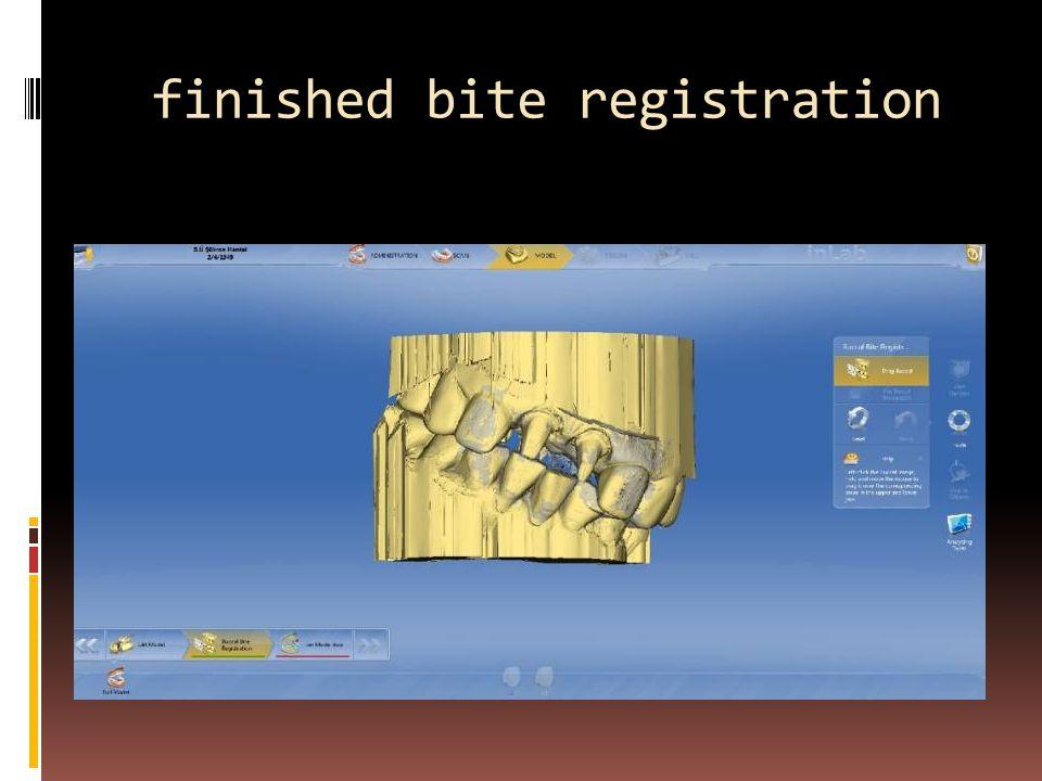 finished bite registration