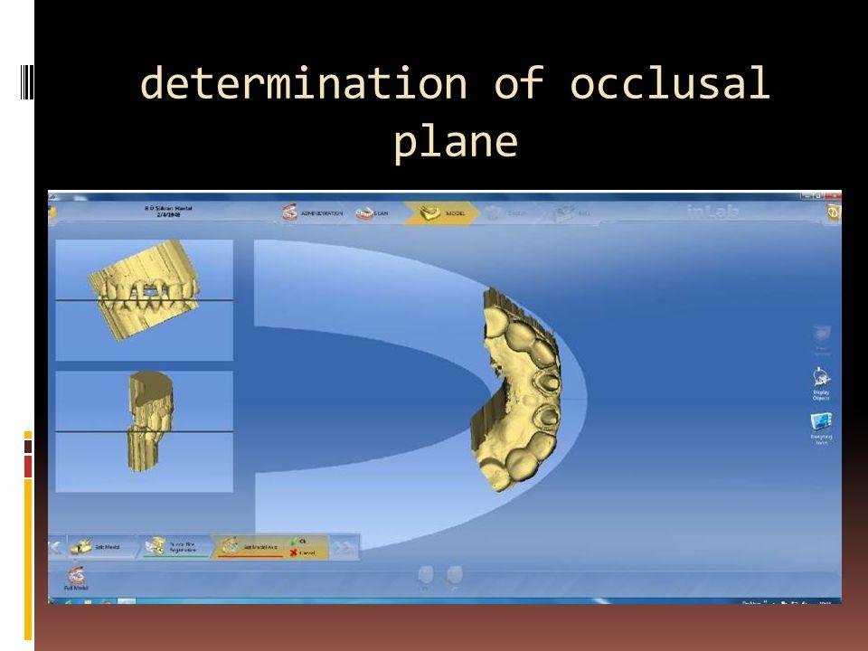 determination of occlusal plane