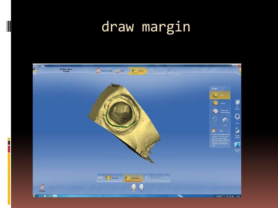 draw margin