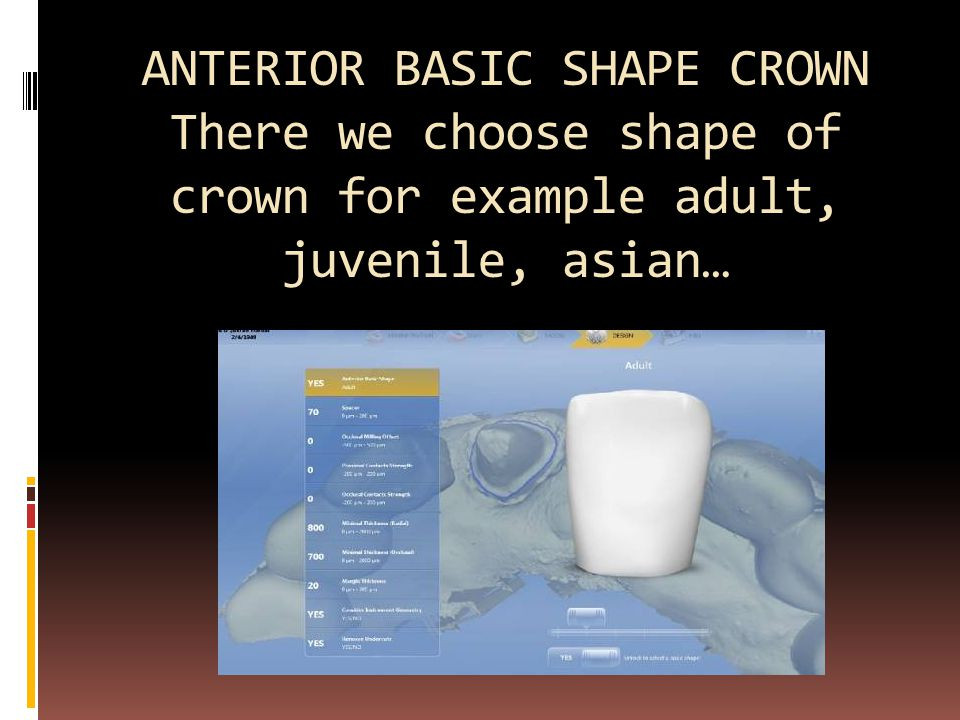 ANTERIOR BASIC SHAPE CROWN There we choose shape of crown for example adult, juvenile, asian…