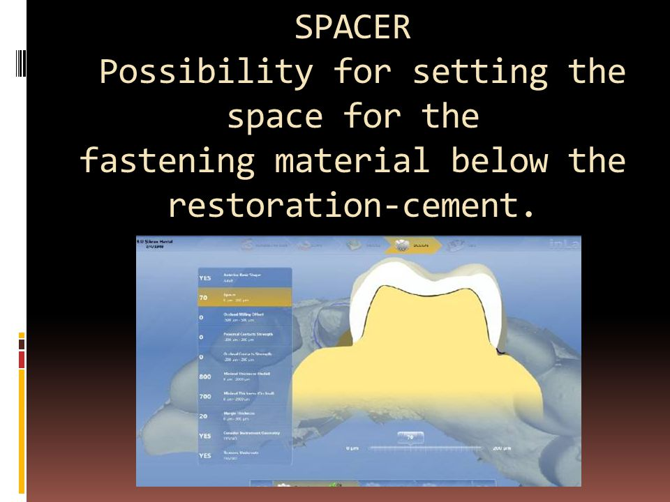 SPACER Possibility for setting the space for the fastening material below the restoration-cement.