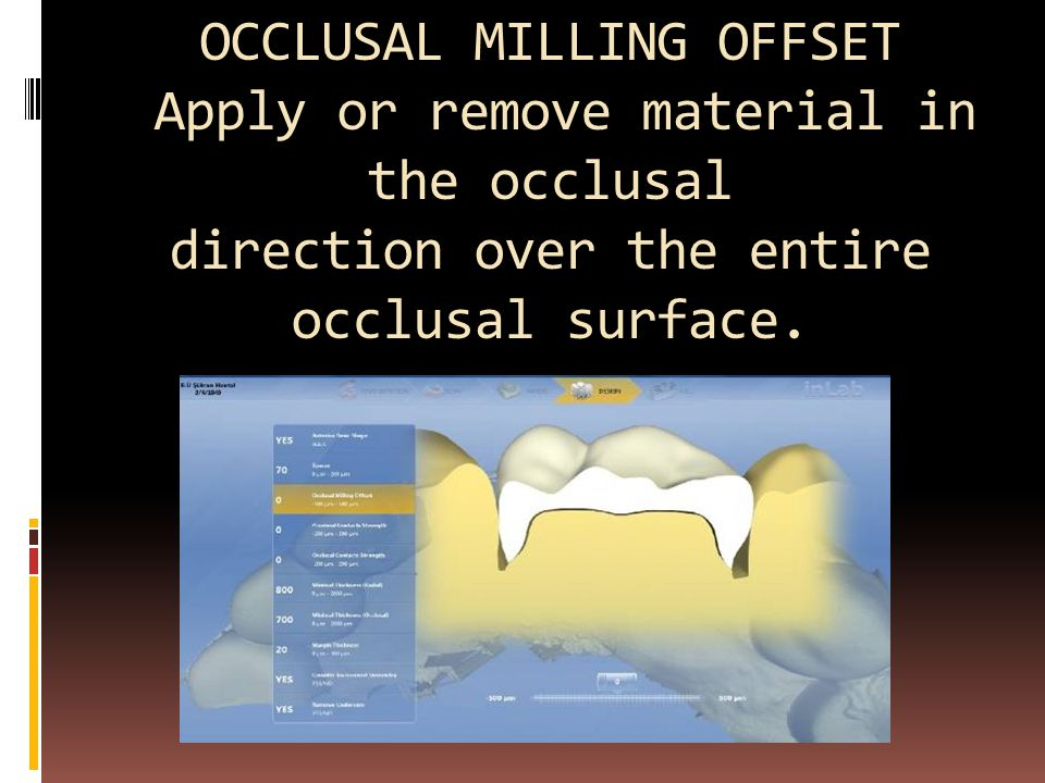OCCLUSAL MILLING OFFSET Apply or remove material in the occlusal direction over the entire occlusal surface.