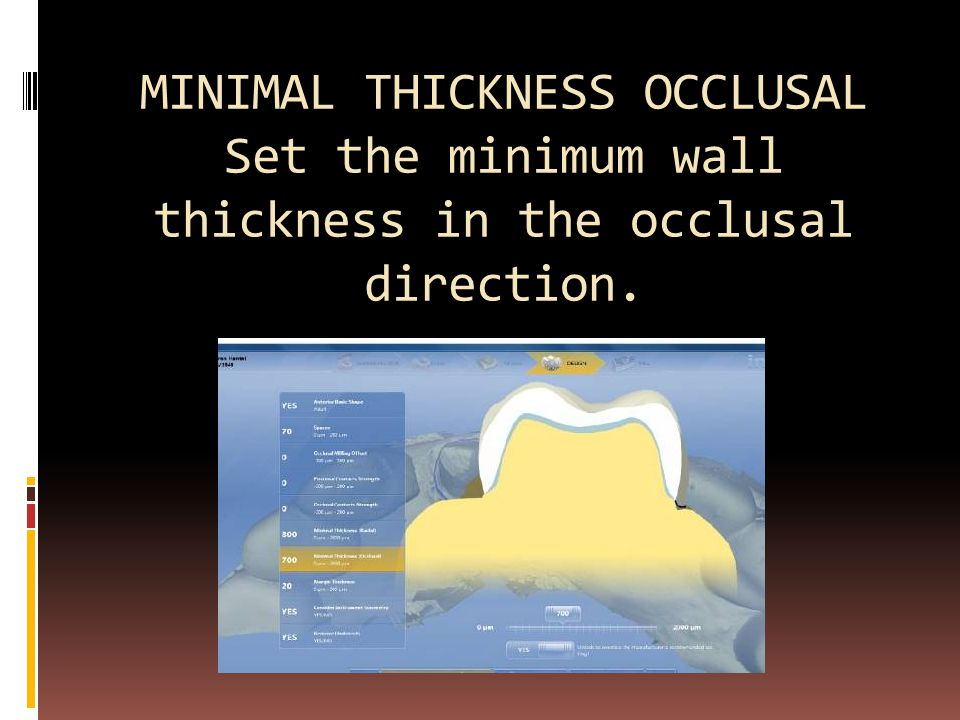 MINIMAL THICKNESS OCCLUSAL Set the minimum wall thickness in the occlusal direction.