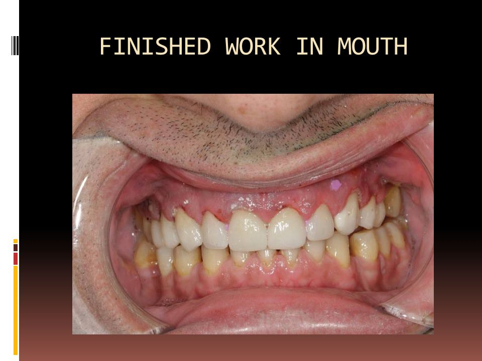 FINISHED WORK IN MOUTH