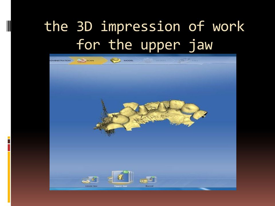the 3D impression of work for the upper jaw