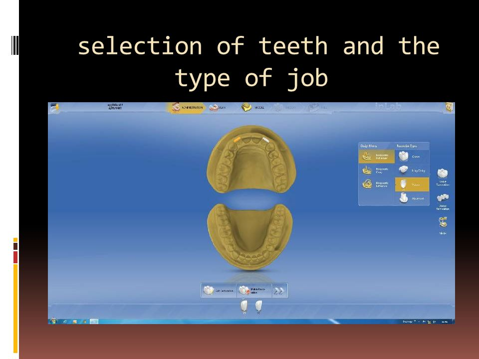 selection of teeth and the type of job