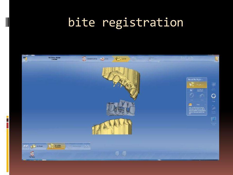 bite registration