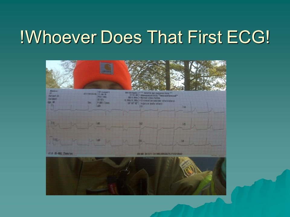 !Whoever Does That First ECG!