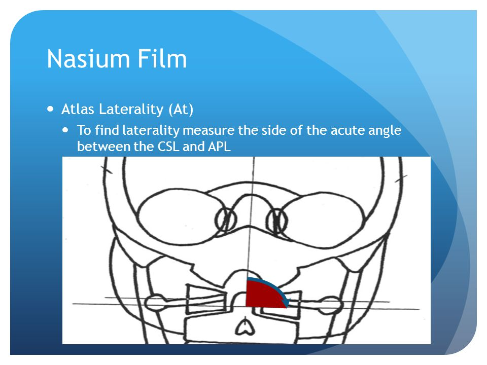 Nasium Film Head Tilt To find the head tilt, measure the angle between the true vertical and the CSL