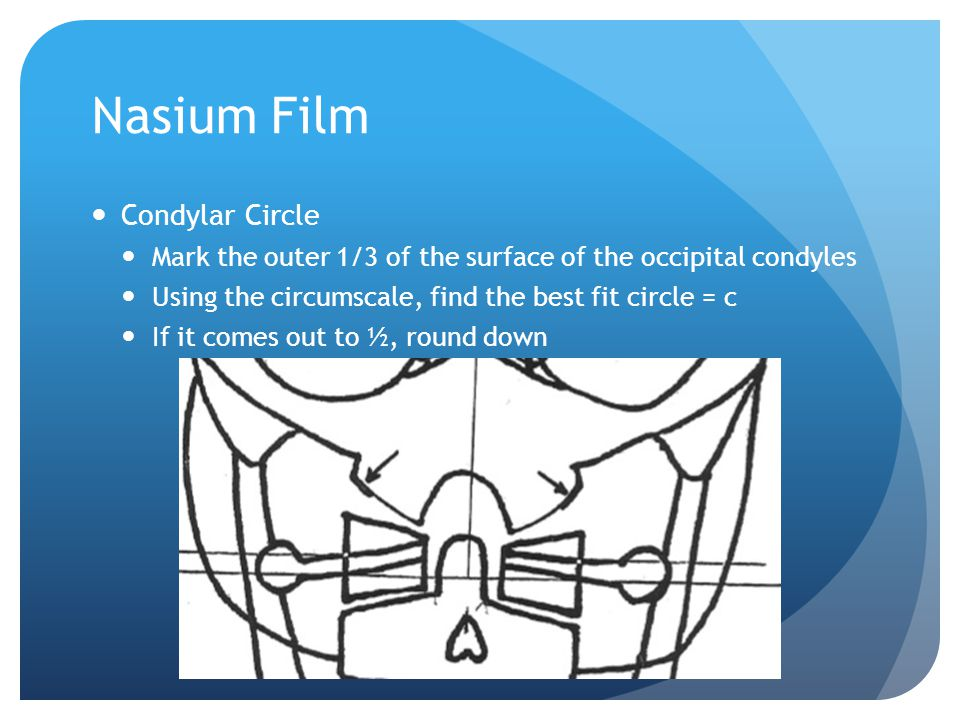 Nasium Film Axial Circle Place a dot (A) on the most lateral aspect of the superior surface of C2 on each side Also place a dot (B) on the medial aspect of the superior surface of C2 on each side Connect those dots on each side From the medial dots, place another dot (C) 3/32'' down perpendicularly from that line Use A and C to find the best fit circle for axis = a If it comes out to ½, round up A A B B
