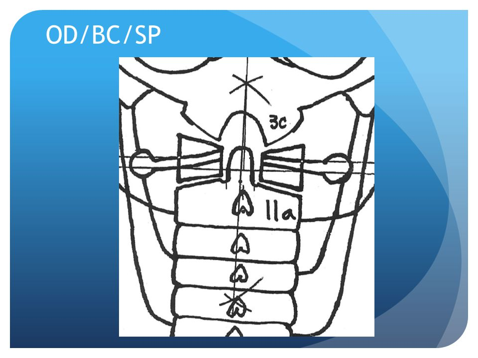 Nasium Film Fixed Point Mark the lateral aspects of the zygapophyseal joints of C7 Determine the midpoint Mark a point (D) between BC and SP if not on same vertical line Connect the midpoint of C7 to D dot D