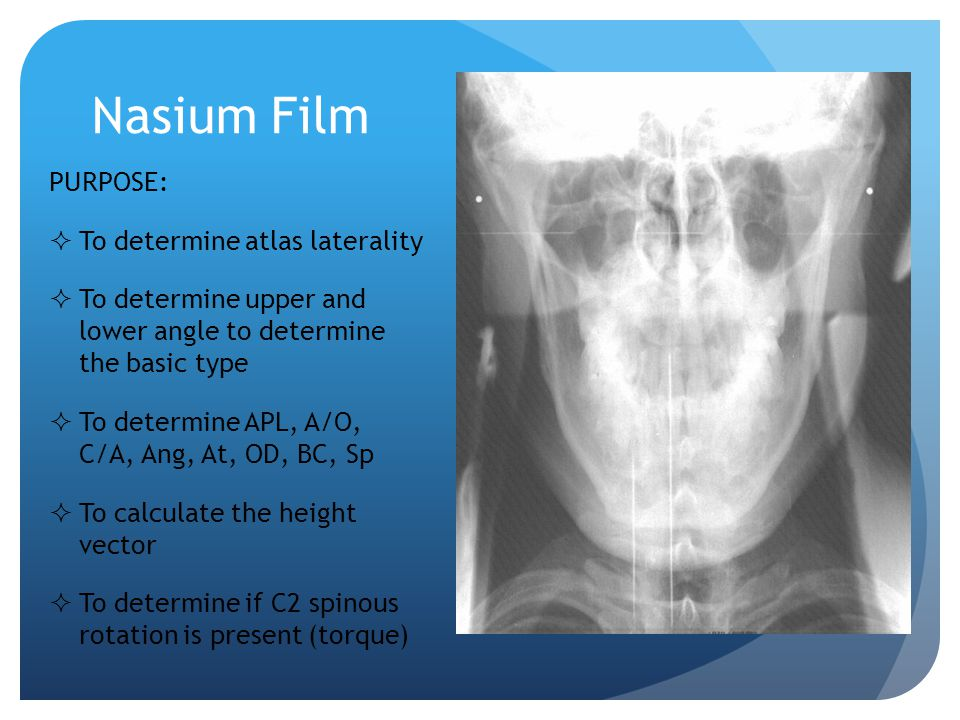 Nasium Film Atlas Plane Line (APL) Place a dot on the lower border of the posterior arch where it crosses the lateral masses on each side of atlas