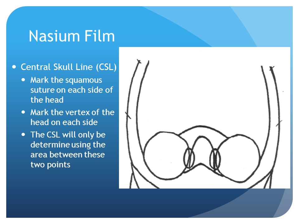Nasium Film CSL Continued Use the Cephalometer to match like points on either side of the head in order to determine the center of the skull Mark a lower pivot point intersecting the APL Mark an upper pivot point at the top of the skull