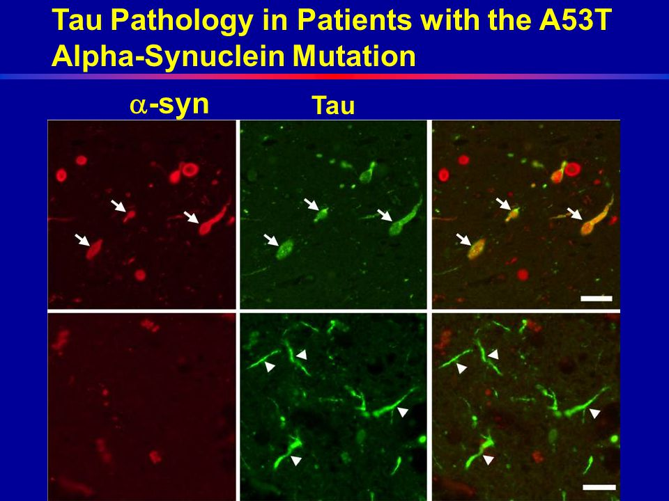 Tau Pathology in Patients with the A53T Alpha-Synuclein Mutation  -syn Tau