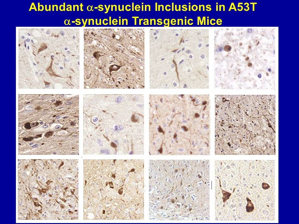 Abundant  -synuclein Inclusions in A53T  -synuclein Transgenic Mice SNL-4 Syn 303 Syn 505 Syn 506 Syn 303 Syn 505 Spinal cord Raphe pons midbrain pons locus ceruleus cerebellum